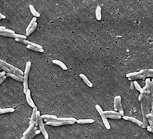 Campylobacter. Foto: CDC/ Dr. Patricia Fields, Dr. Collette Fitzgerald